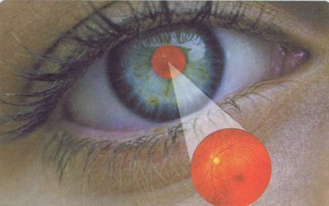 Glaucoma: The Silent Cause of Blindness